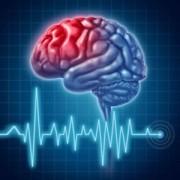 Какие признаки инсульта у женщин? Как вовремя опознать болезнь?