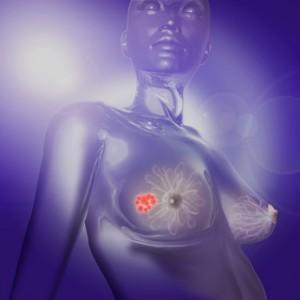 фиброаденома молочной железыы