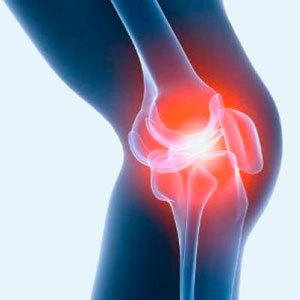 как лечить артроз коленного суставаы