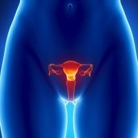 дисплазия шейки матки 3