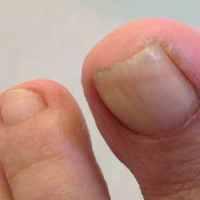 что делать если ноготь врастает в палец на ноге