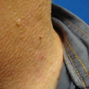 Как лечить папилломы на теле
