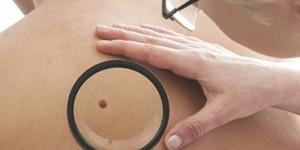 Папилломы в интимной зоне как лечить
